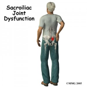Sacroillac Joint Dysfunction